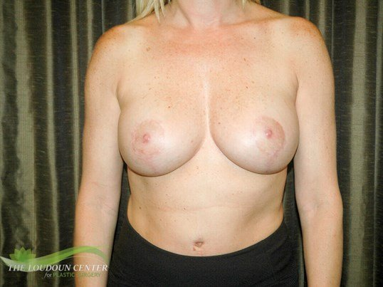 Smaller Breast Implants After