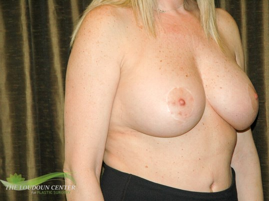 Smaller Breast Implants Before