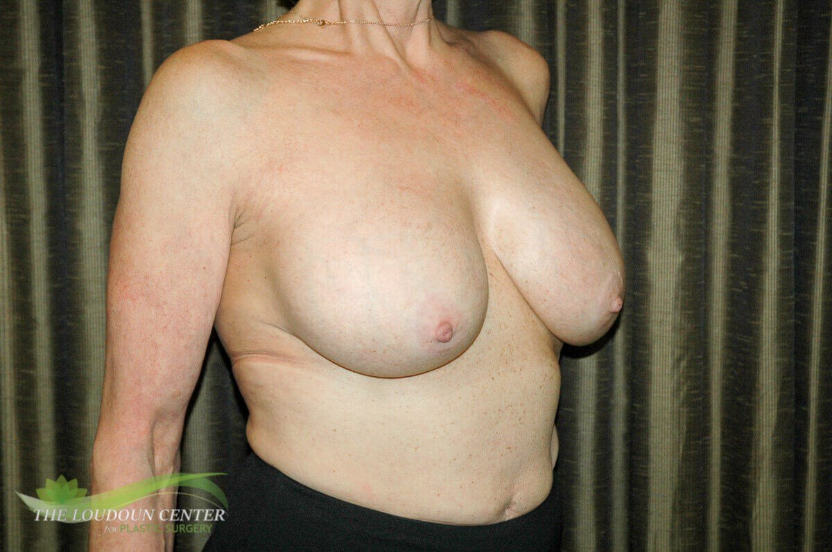 Breast Implant Exchange & Lift Before