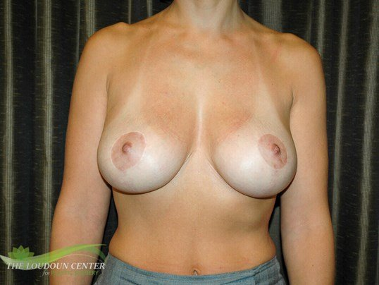 Breast Lift Surgery After