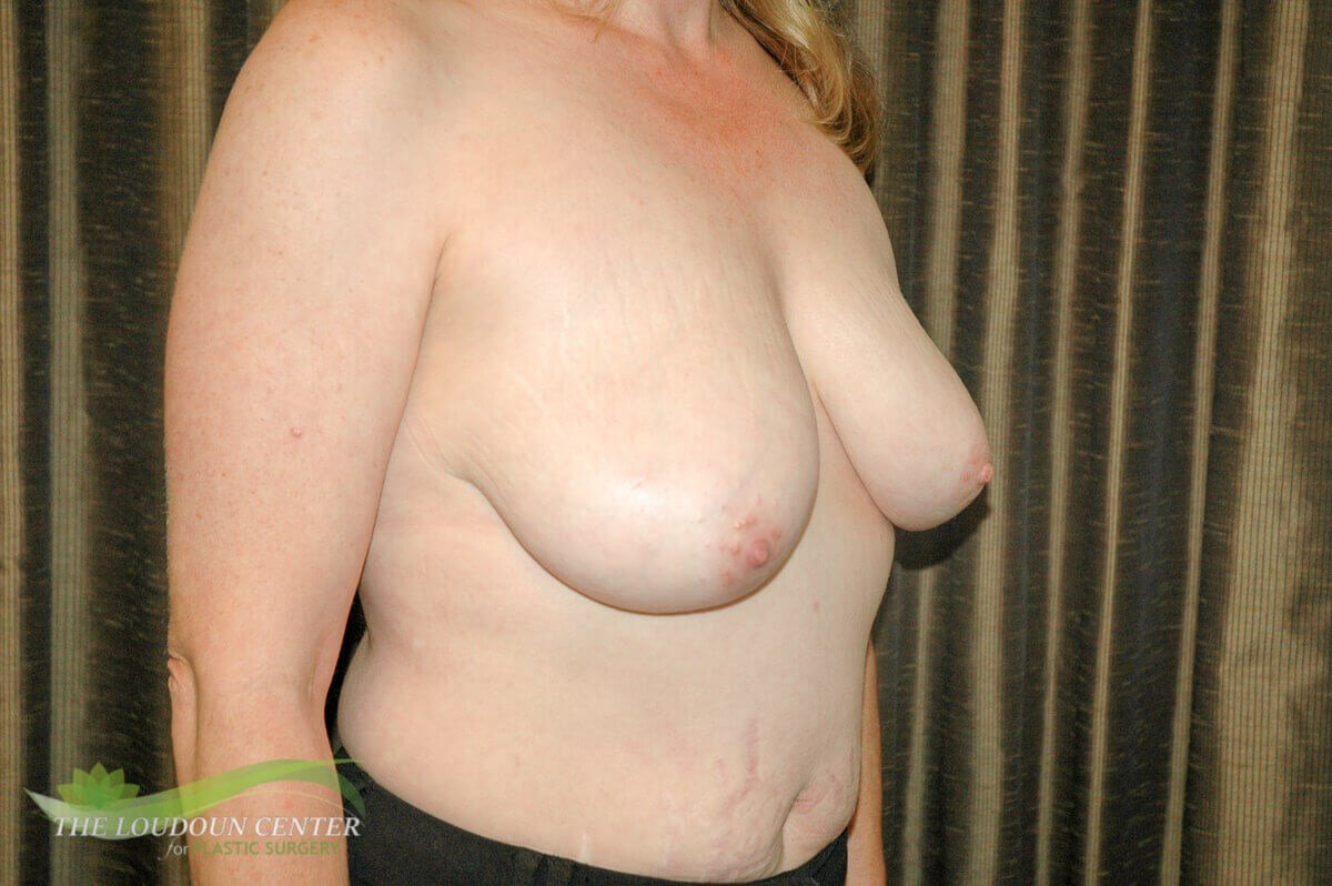 Breast Lift Surgery Before