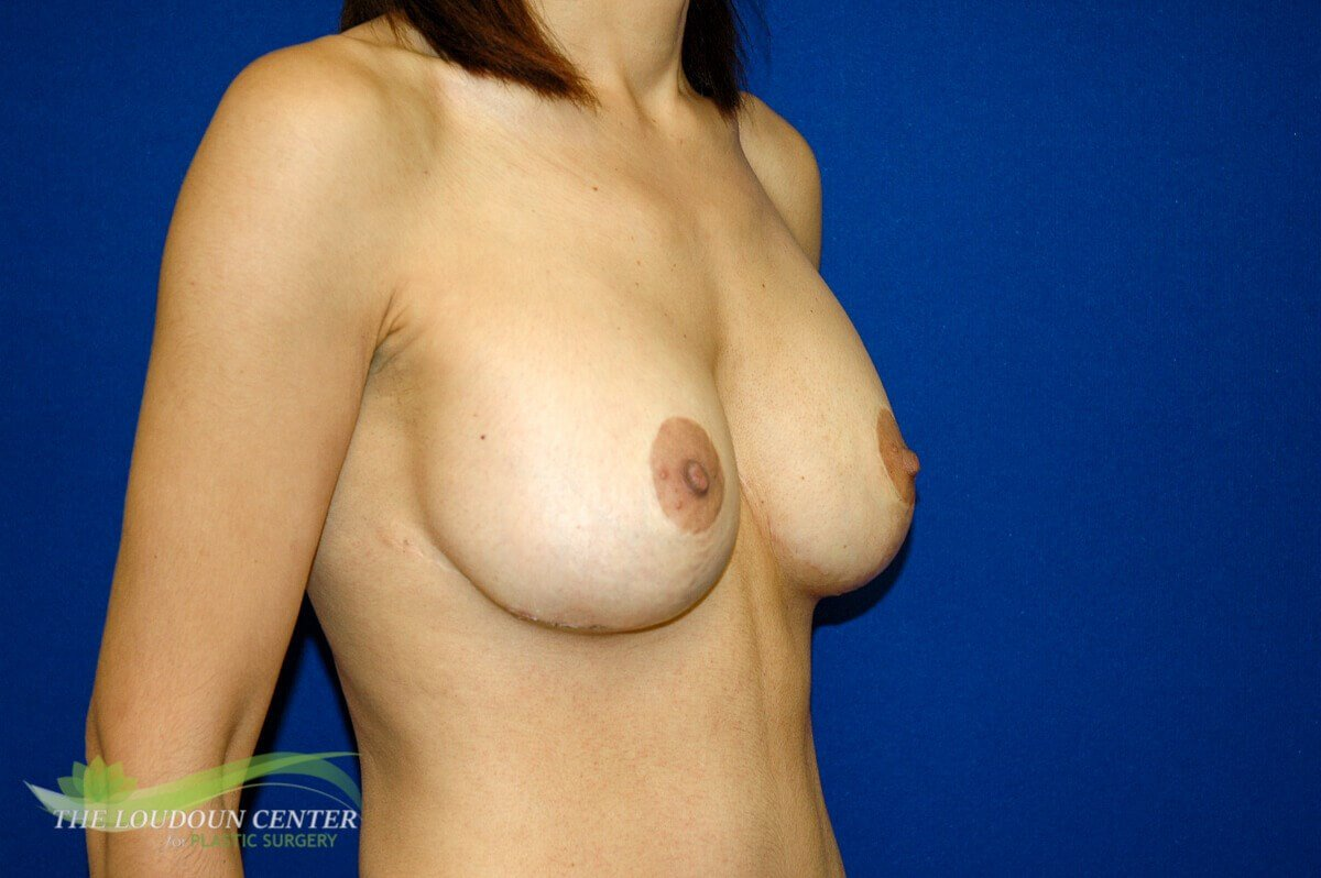 Implants after Reduction Sx After