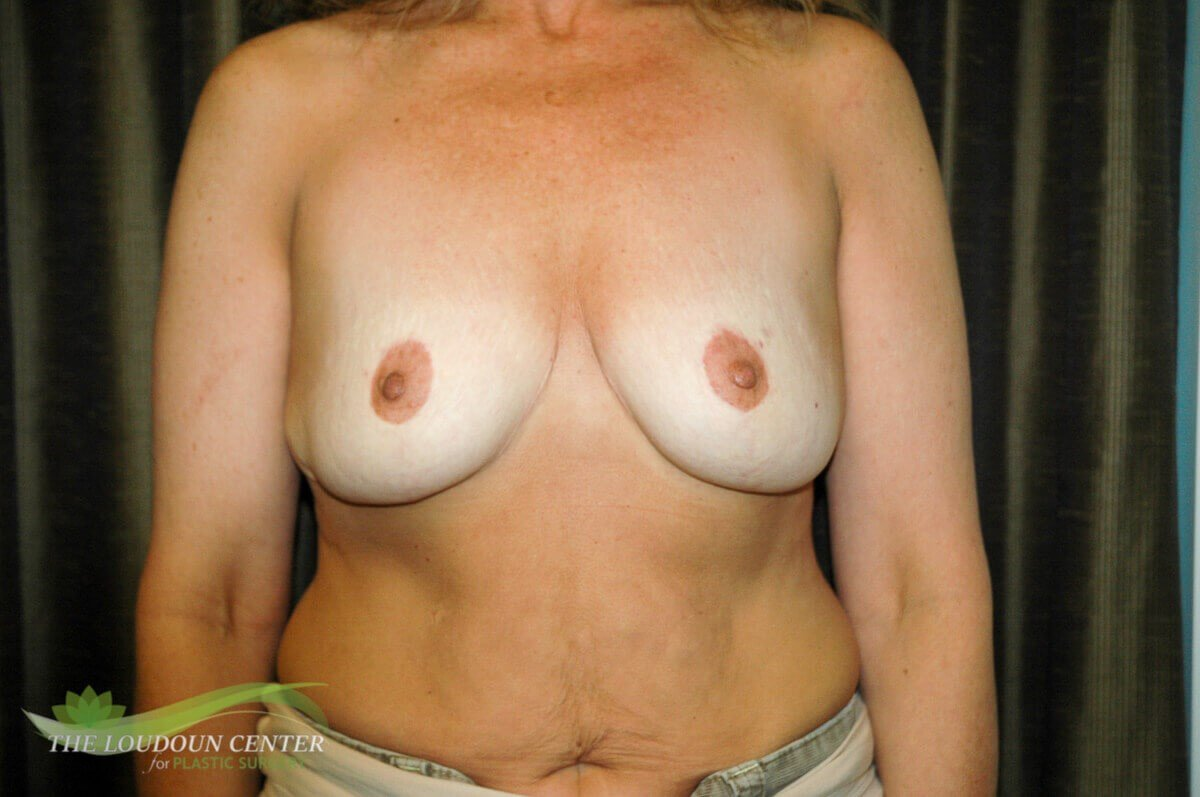 Implants after Reduction Sx Before