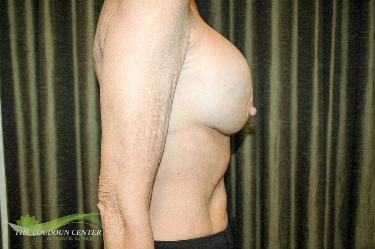 Capsular Contracture Repair Before