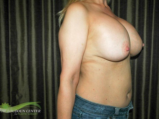 Breast Implant Removal Photos Before