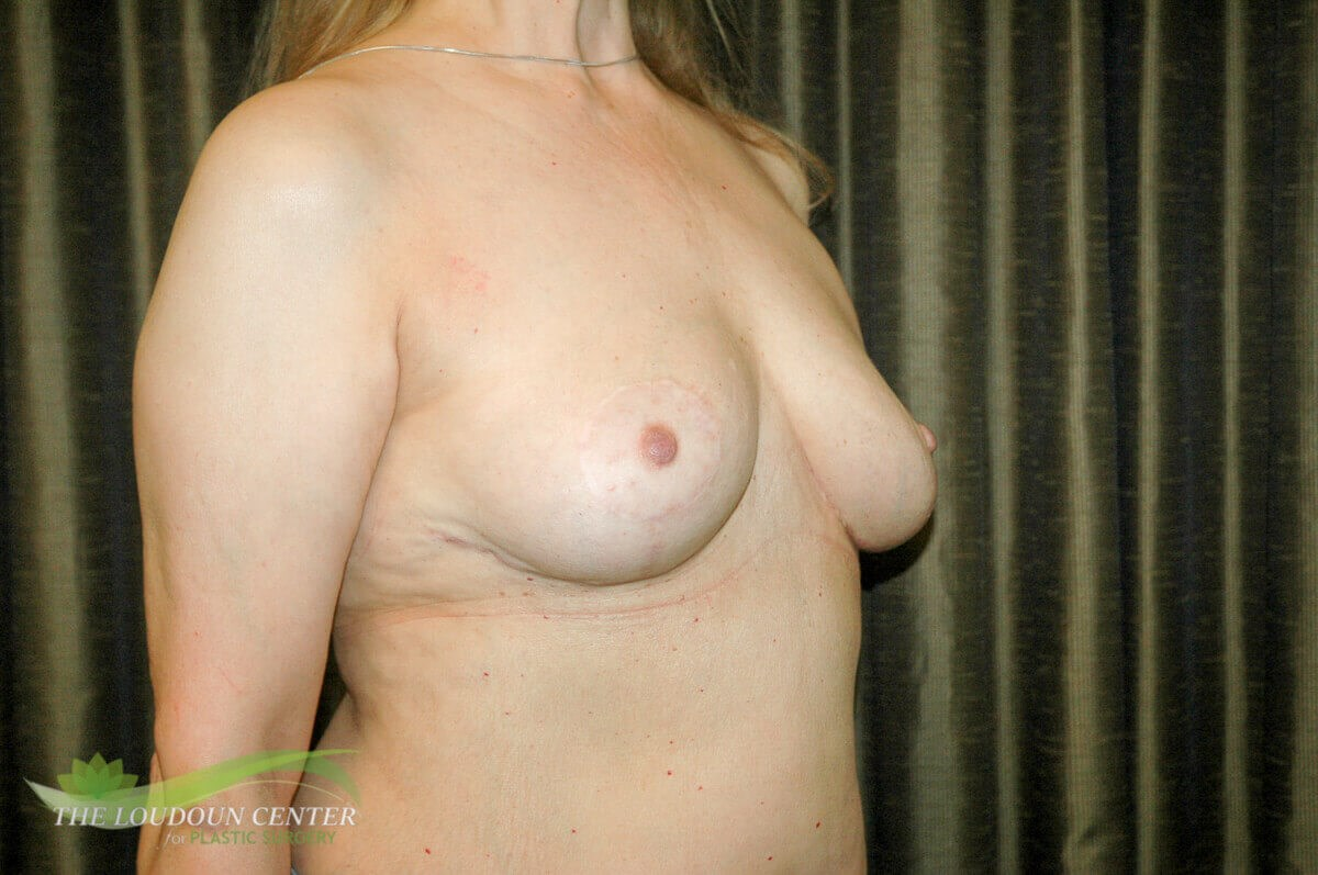 Breast Implant Removal Photos After