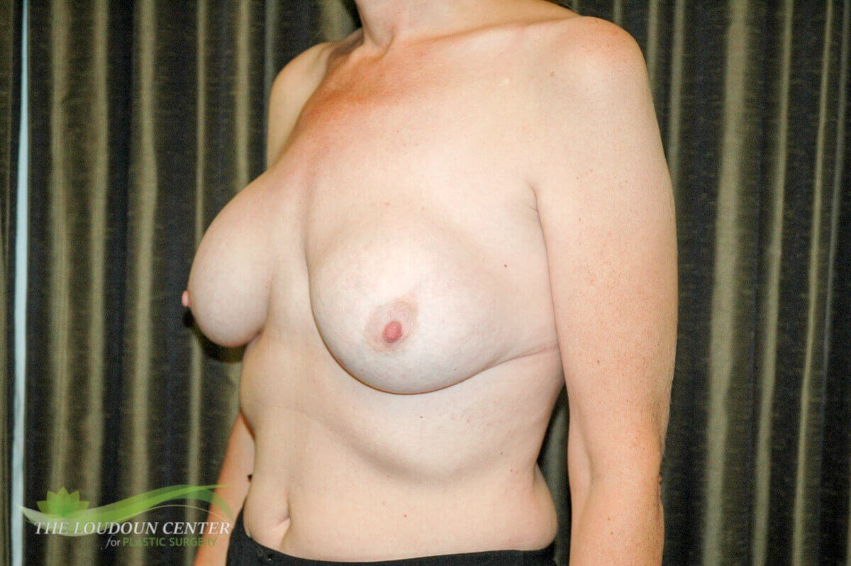 Breast Implant Removal & Lift Before