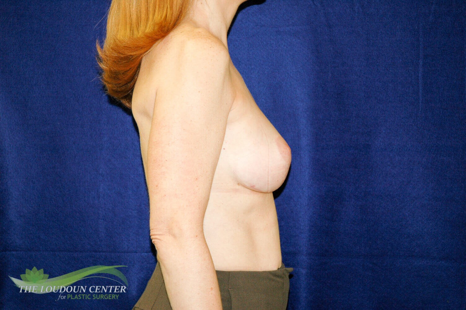 Capsular Contracture Repair After