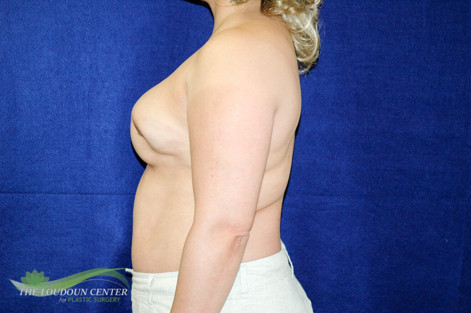 Breast Reconstruction Revision Before