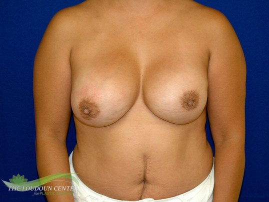 Breast Reconstruction Revision After