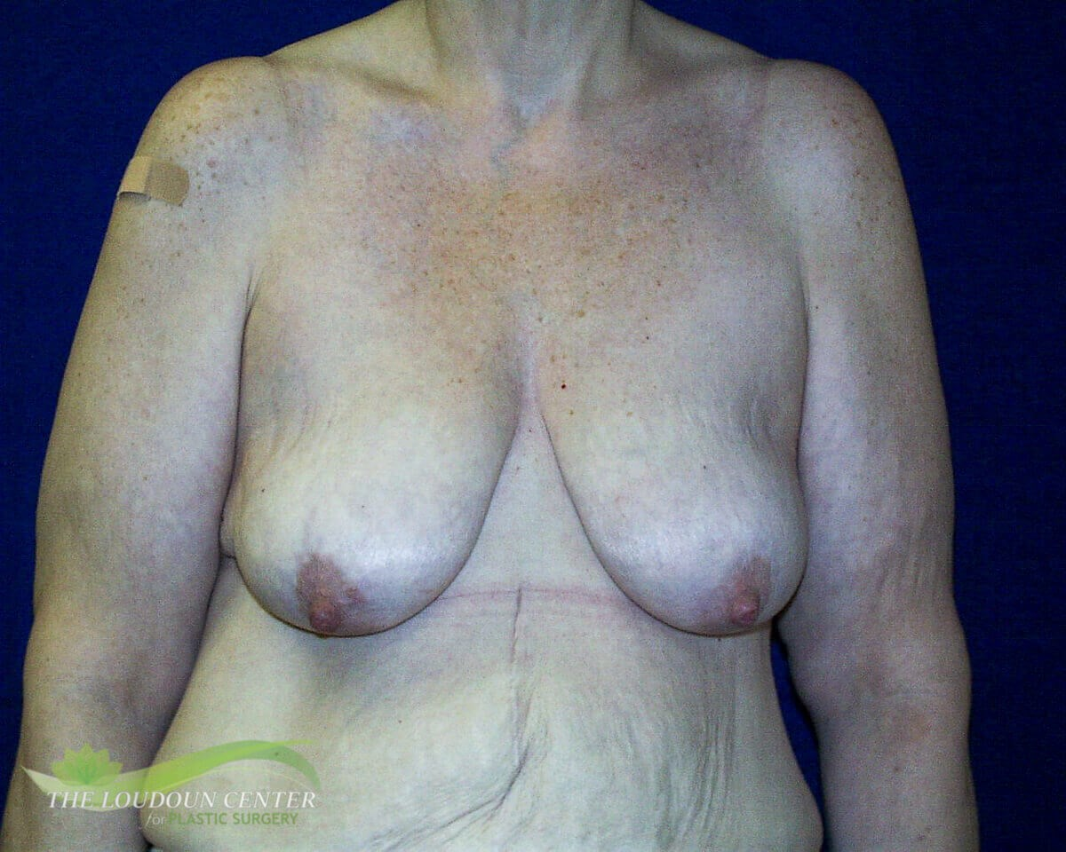 Breast Lift - Frontal Before