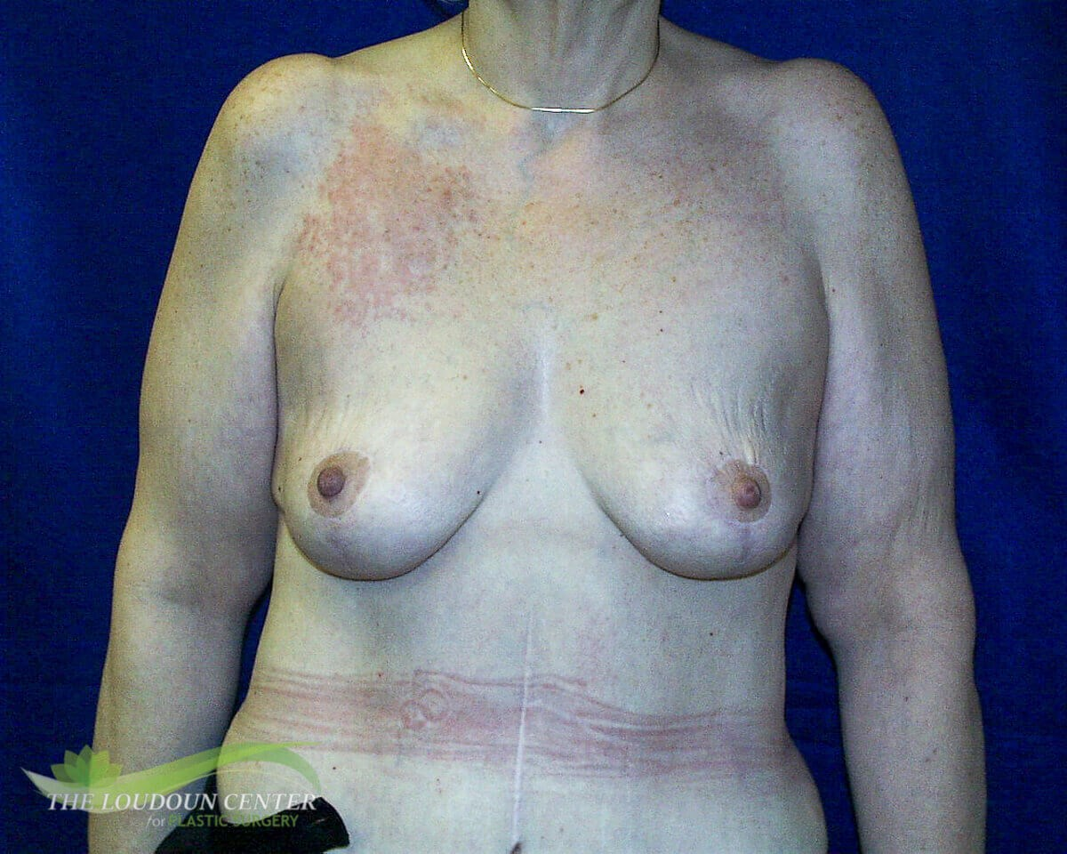 Breast Lift - Frontal After