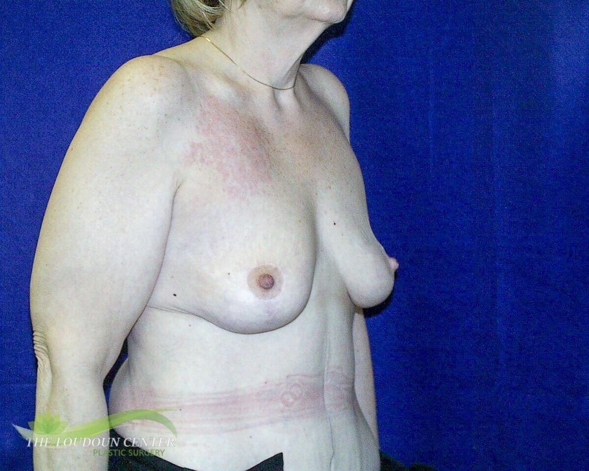 Breast Lift - Profile After