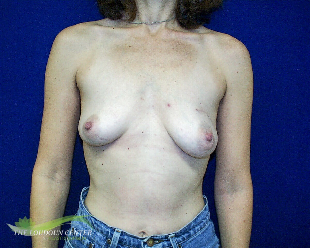 Staged Breast Reconstruction Before