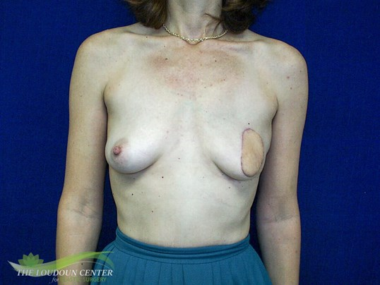 Staged Breast Reconstruction After