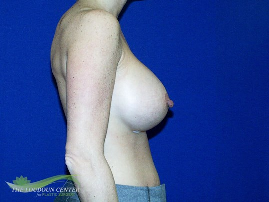 Large Breast Implant Exchange After
