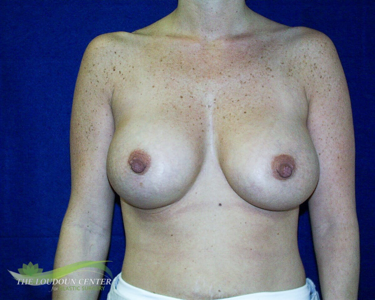 Large Breast Implant Exchange Before