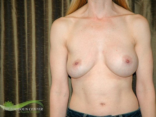 Deflated Breast Implant Photos Before