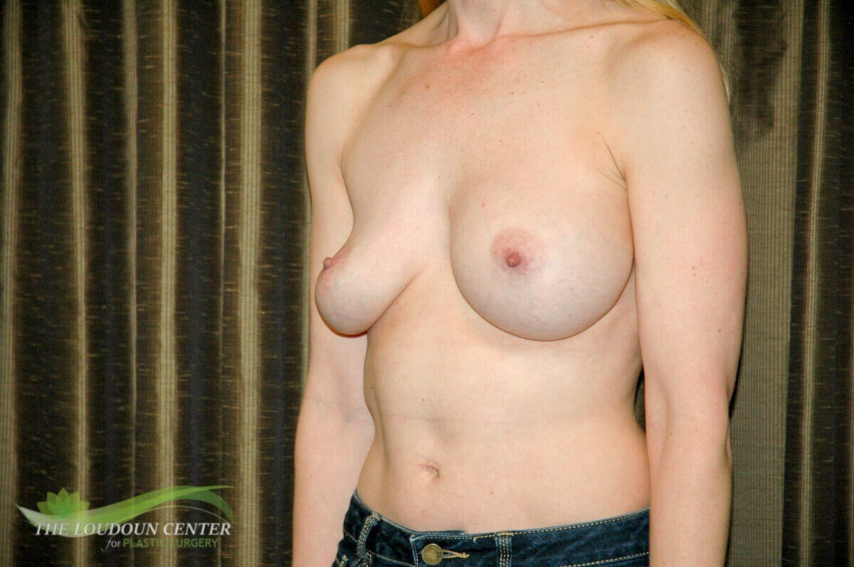 Breast Implant Exchange Photos Before