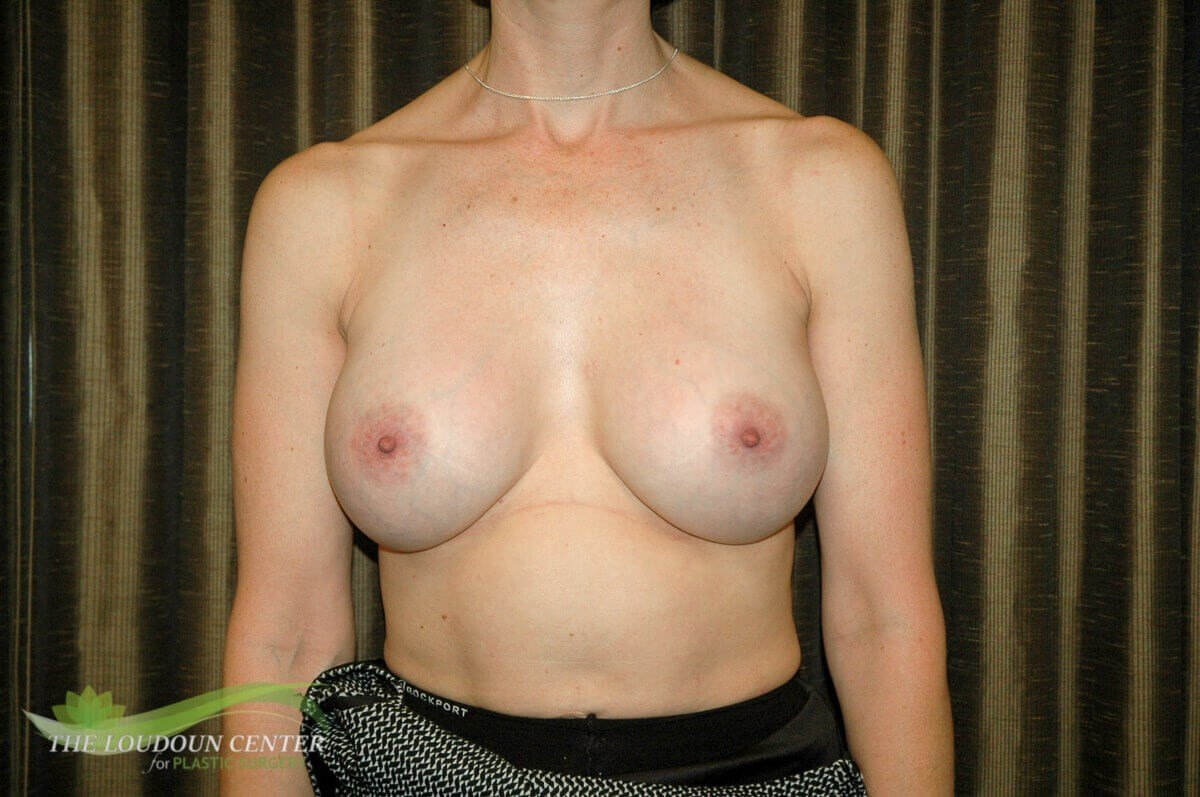 Deflated Breast Implant Photos After