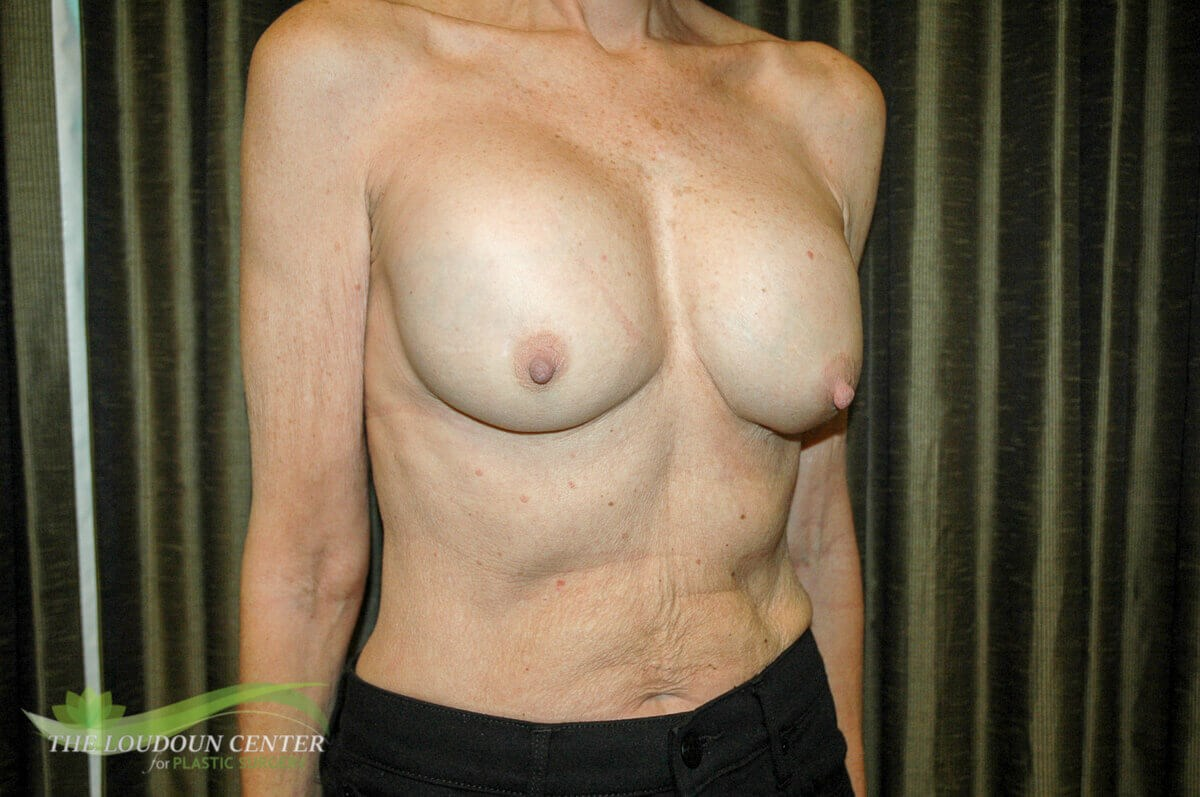 Breast Impant Replacement Before