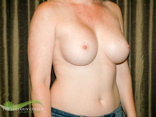 Breast Fold Reconstruction After