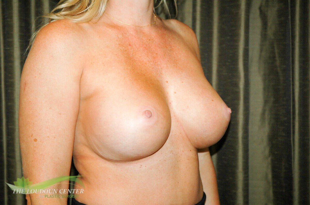 Breast Fold Reconstruction Before