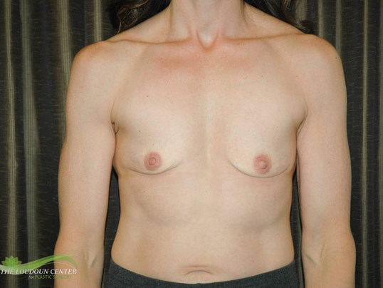 Muscular Woman & Implants Before