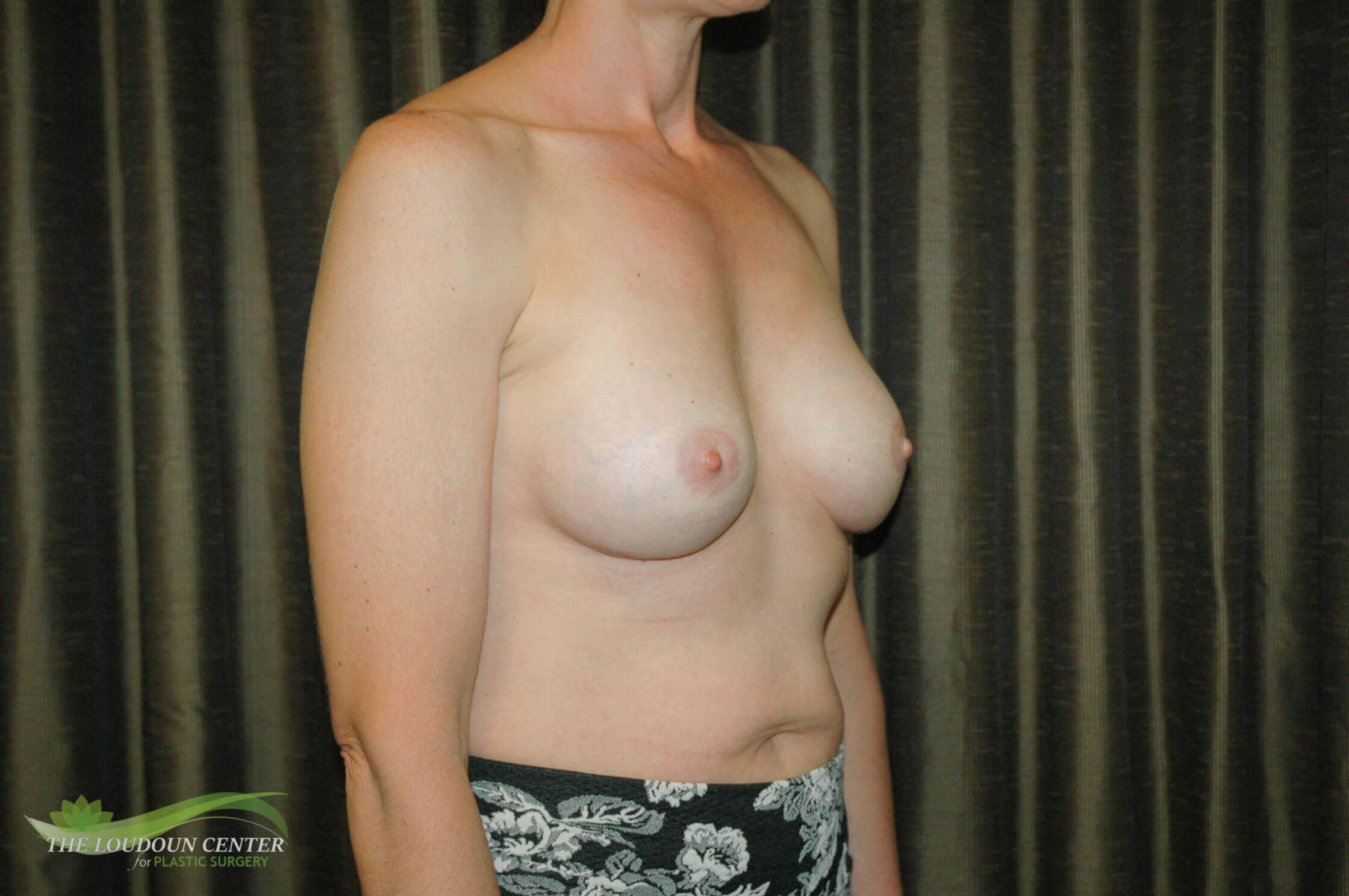 Muscular Woman & Implants After