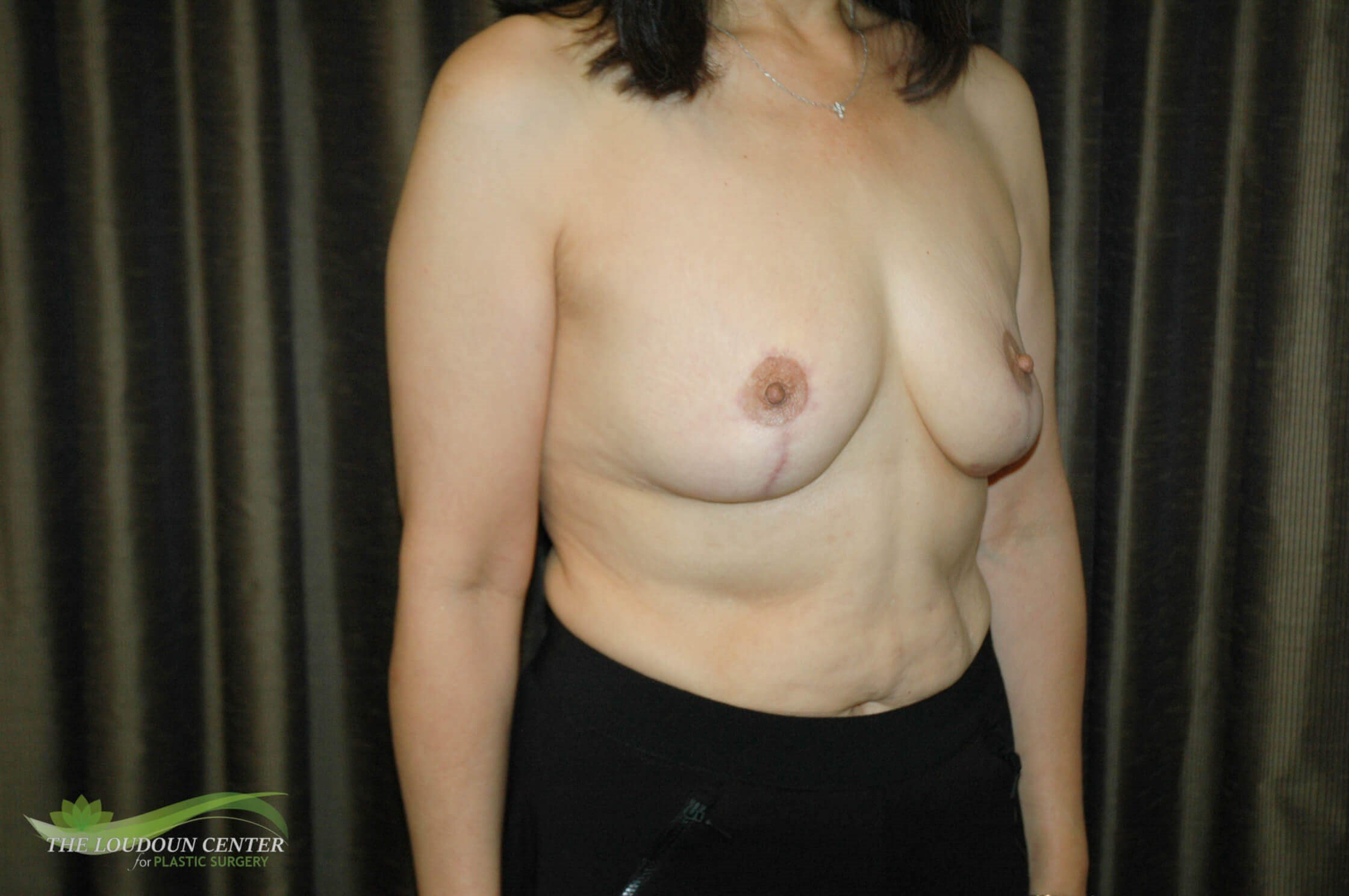 Breast Implant Removal & Lift After