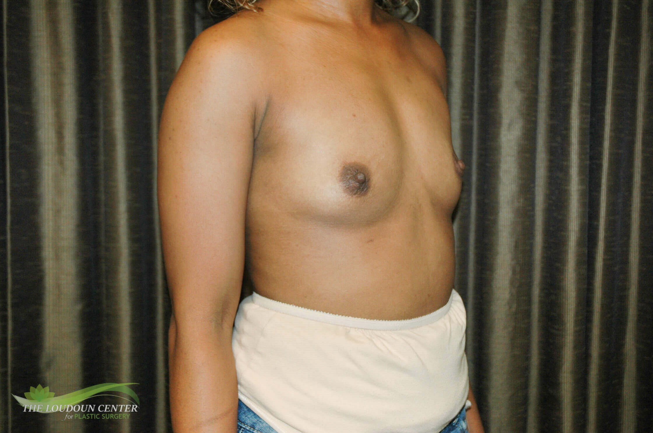 Wide Gap & Breast Augmentation Before