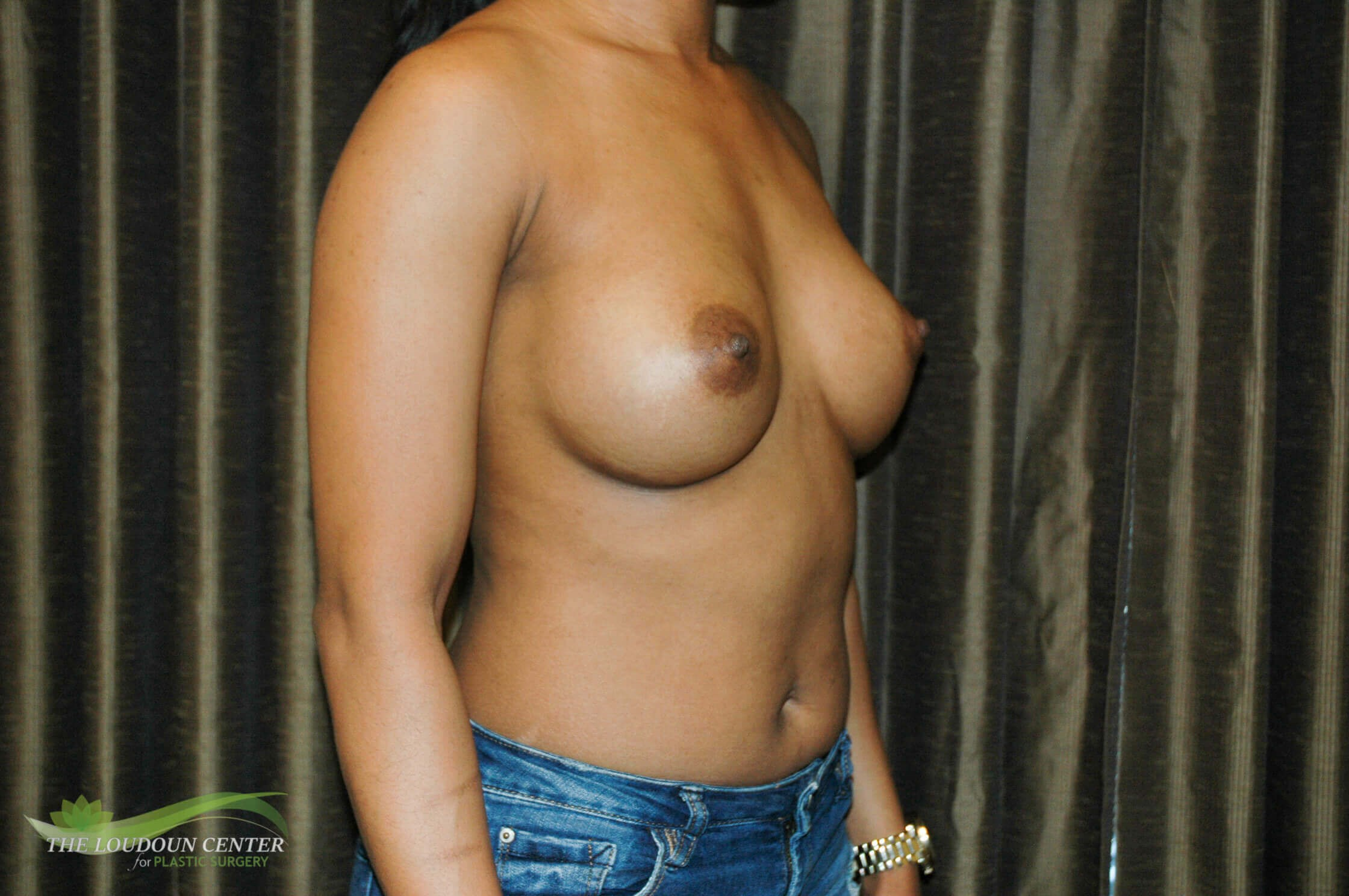 Wide Gap & Breast Augmentation After