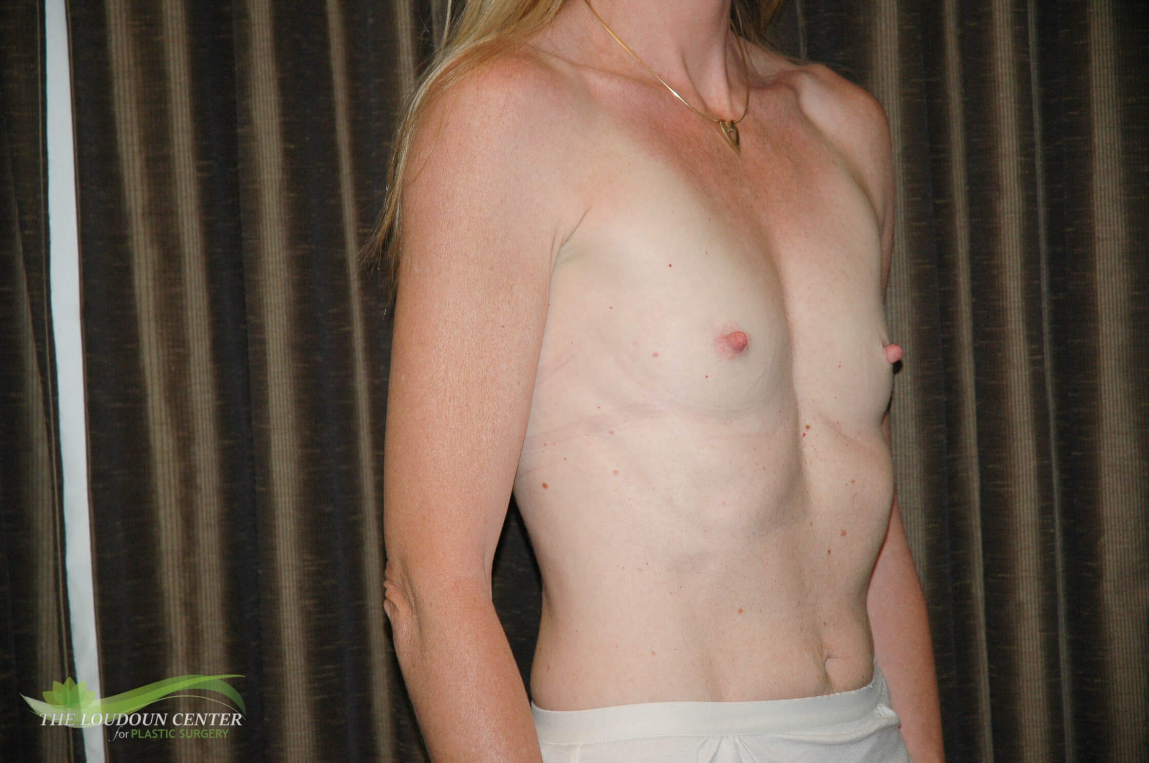 Thin Woman Breast Implants Before