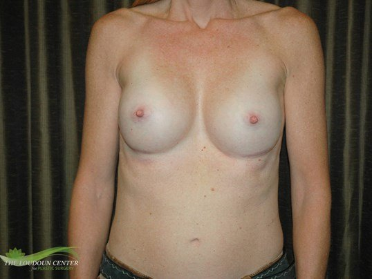Thin Woman Breast Implants After