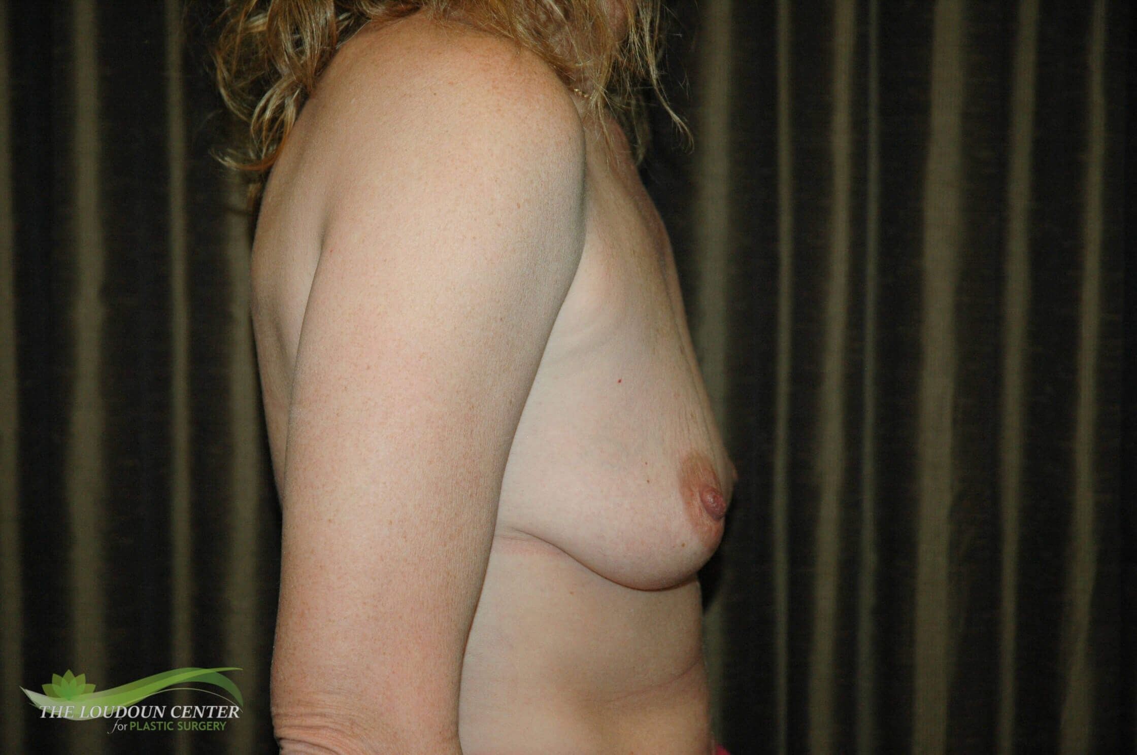Breast Augmentation & Lift Before