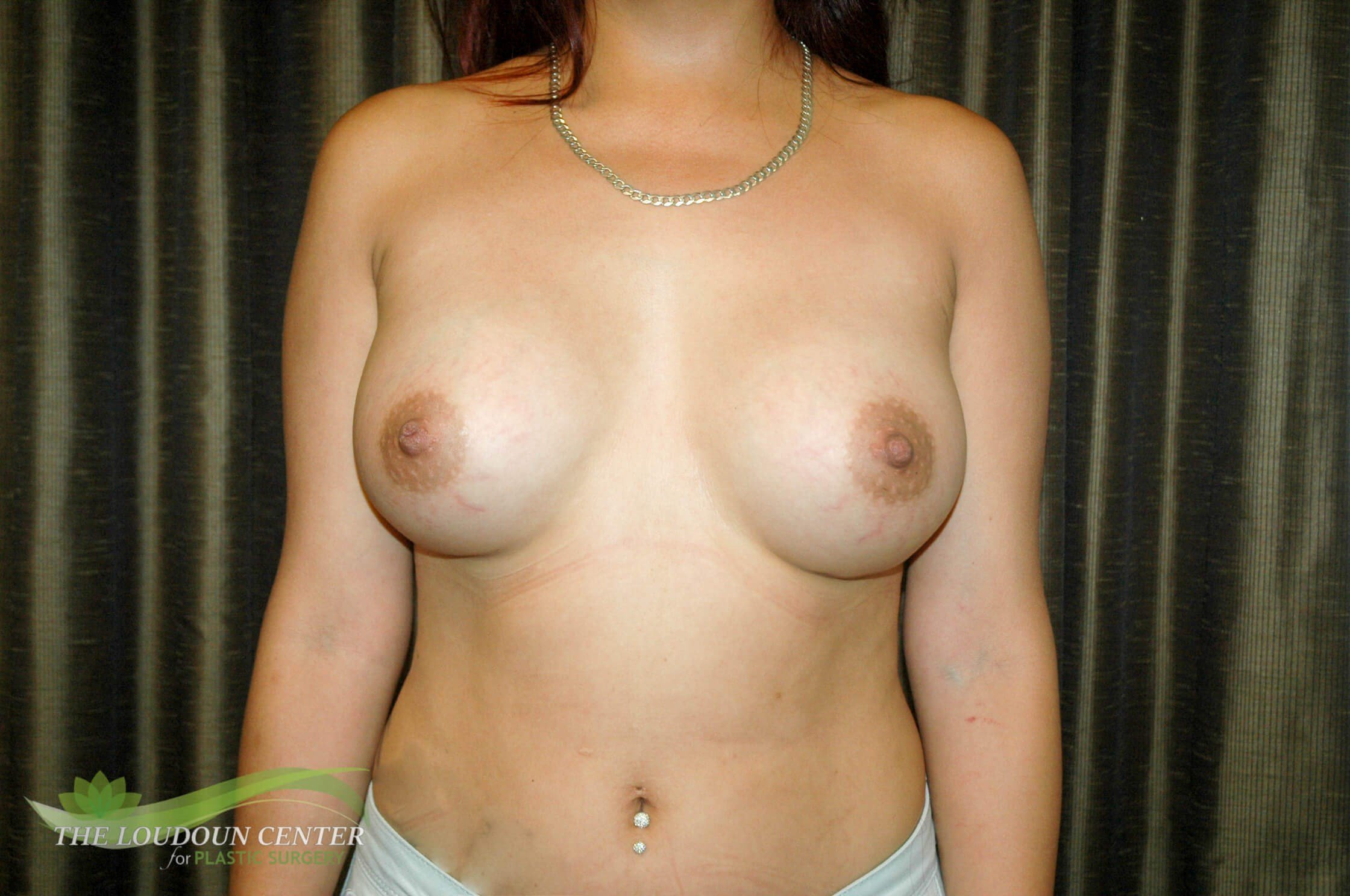 Breast Augmentation Pictures After
