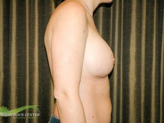 Breast Implant Exchange Photos After