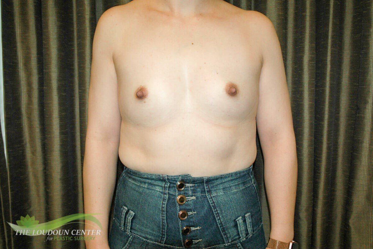 Breast Augmentation Photos Before