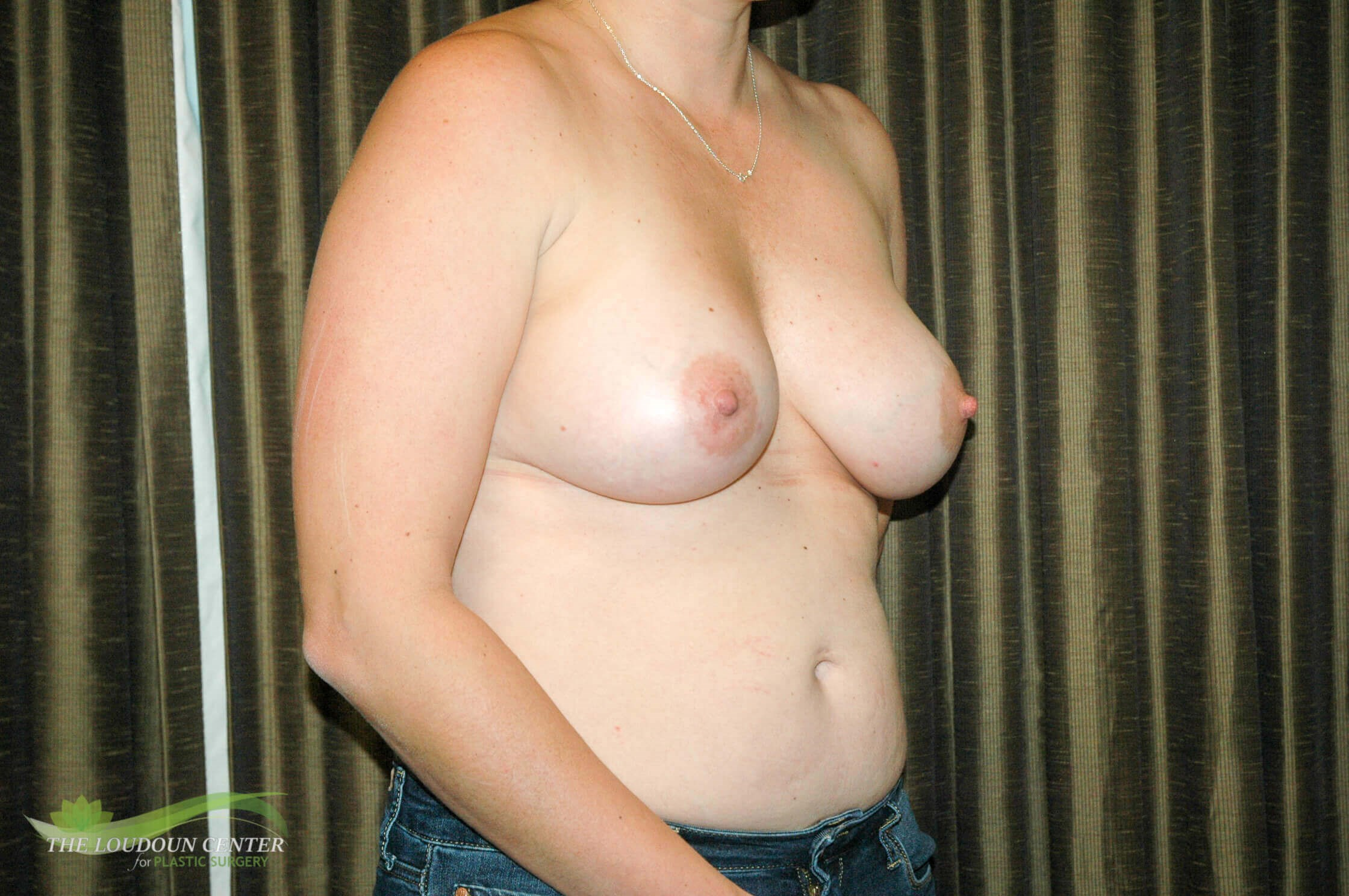 Breast Augmentation Photos After
