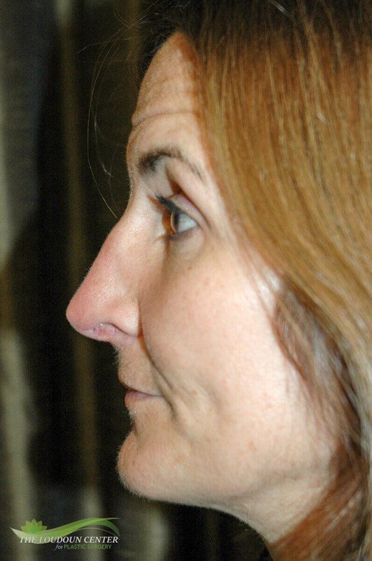 Nose Plastic Surgery After