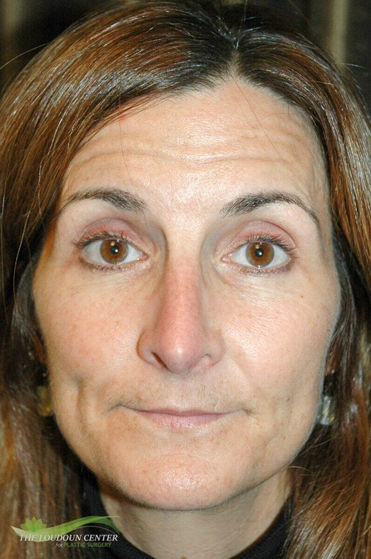 Nose Plastic Surgery Before