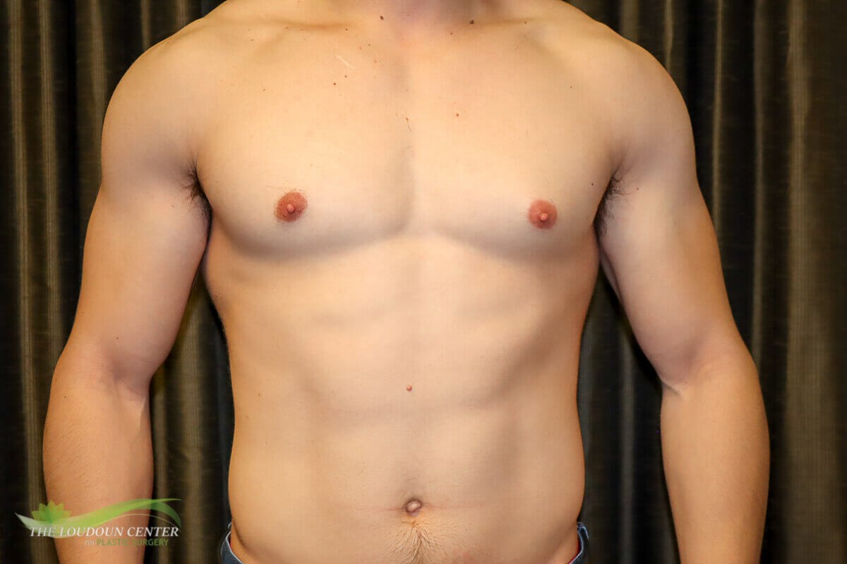 Gynecomastia - Front Before