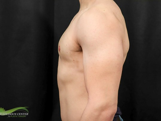 Gynecomastia - Profile After