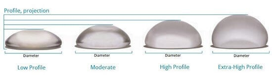 Breast Implant Profile